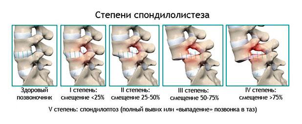 Нестабильность шейных позвонков у детей как лечить