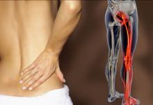 Боль в пояснице отдаёт в ногу - люмбоишиалгия