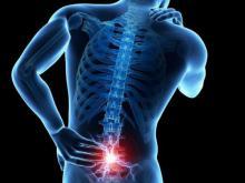 Как лечить поясничный остеохондроз и радикулит