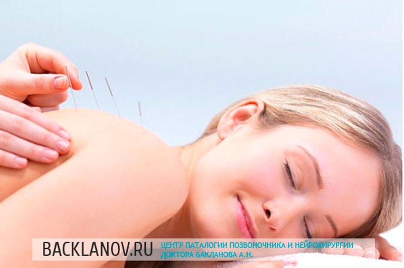 Иглоукалывание - один из методов лечения межпозвоночной грыжи