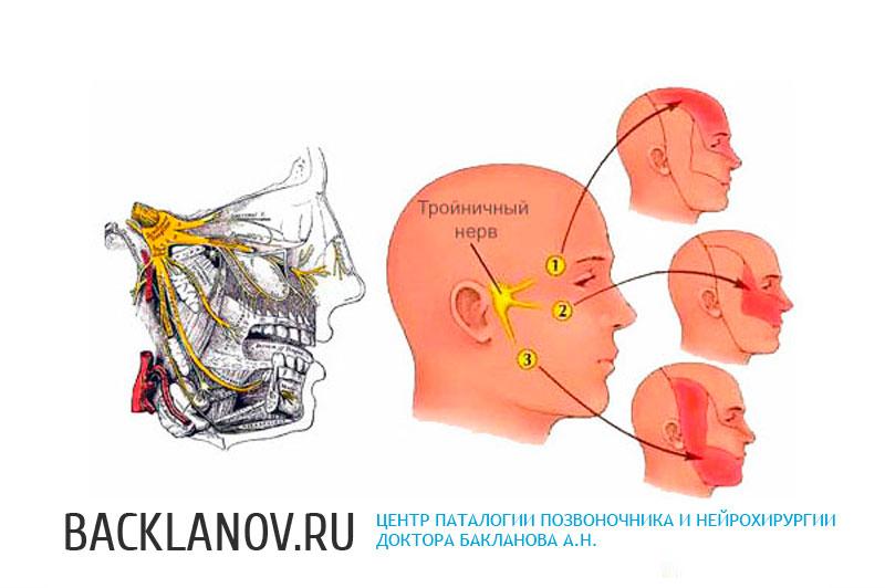 согласен остеохондроз шейного отдела и тройничный нерв нет