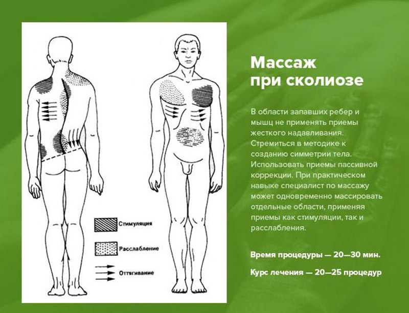Конспект по массажу при сколиозе 1 степени