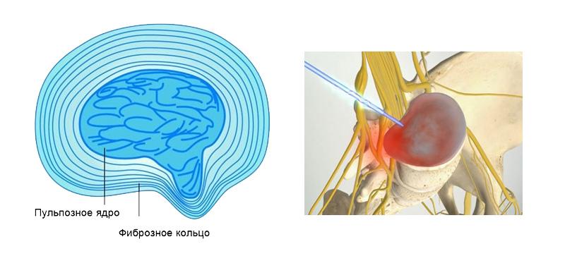 Удаление грыжи шейного отдела позвоночника степень опасности