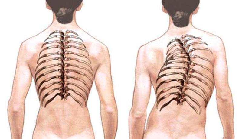 Сколиоз грудного отдела позвоночника | Центр патологии позвоночника