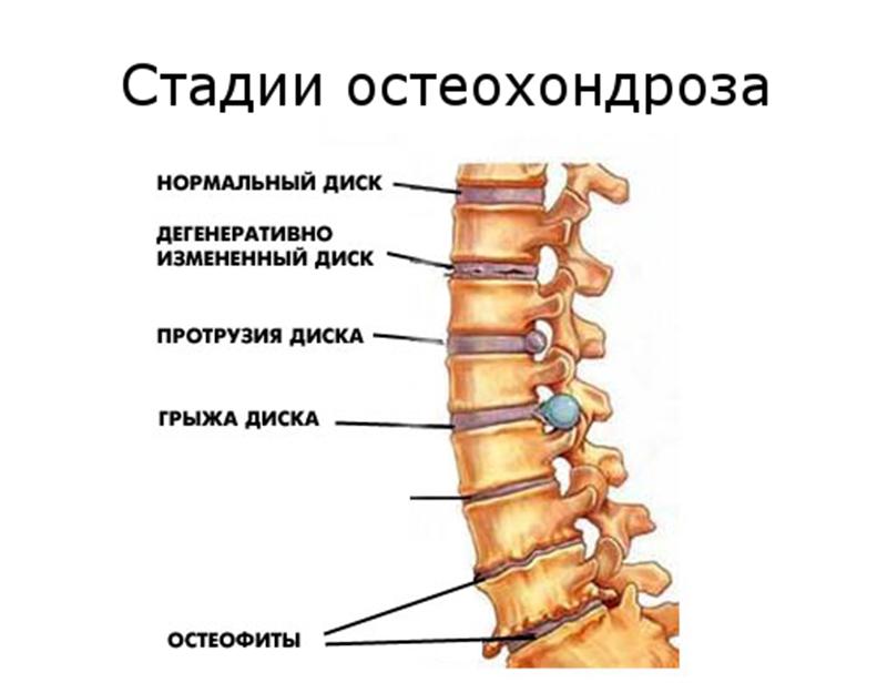 osteohondroz-artmedika
