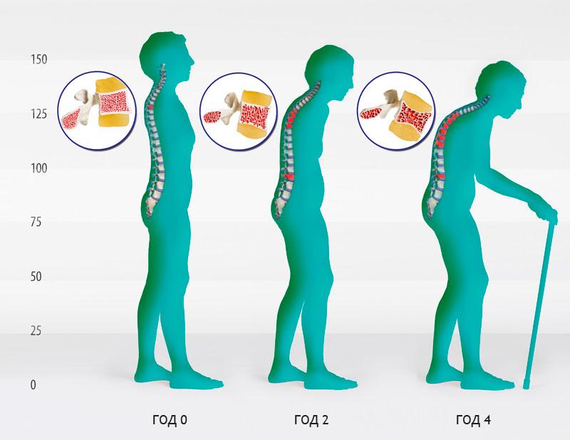 Болезнь Шейермана Мау: что это такое, причины синдрома, как лечить юношеский кифоз, ЛФК для профилактики