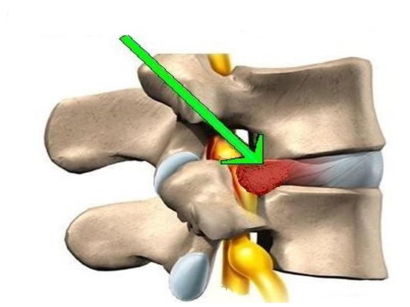 Грыжа диска позвоночника - Лечение грыжи диска позвоночника
