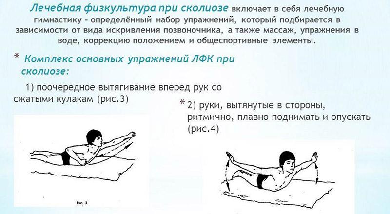 Лечебная гимнастика при сколиозе грудного отдела позвоночника