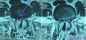 Лечение стеноза в Клинике А.Н. Бакланова