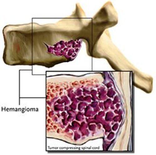 Гемангиома грудного отдела позвоночника симптомы и лечение