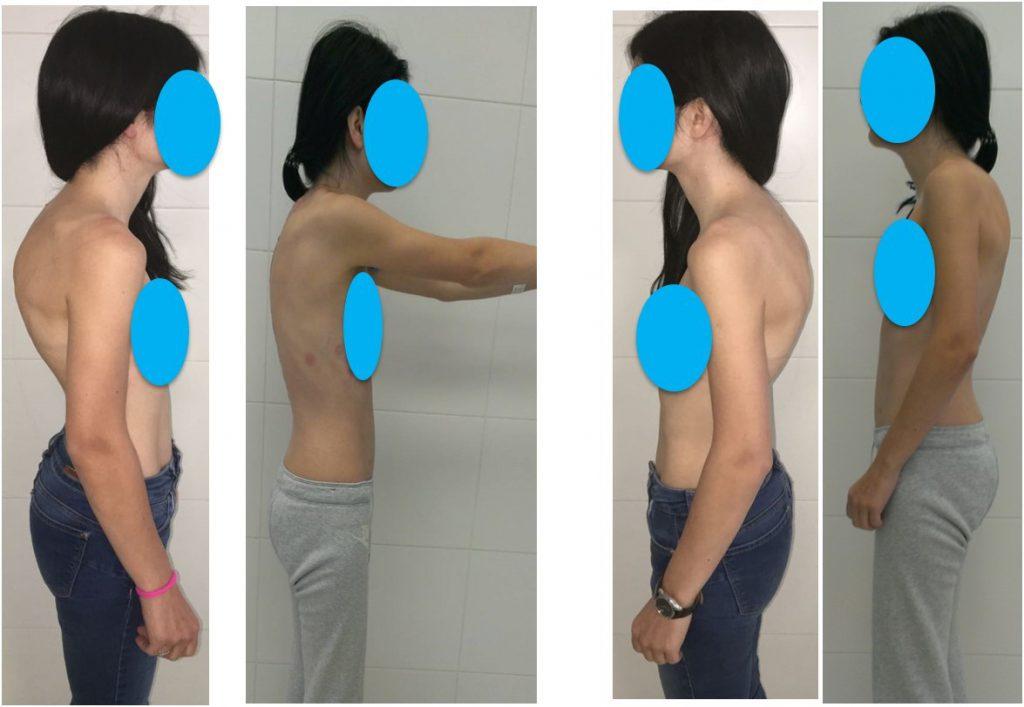 Хирургическое лечение в Клинике А.Н. Бакланова при болезни Шойерман-Мау