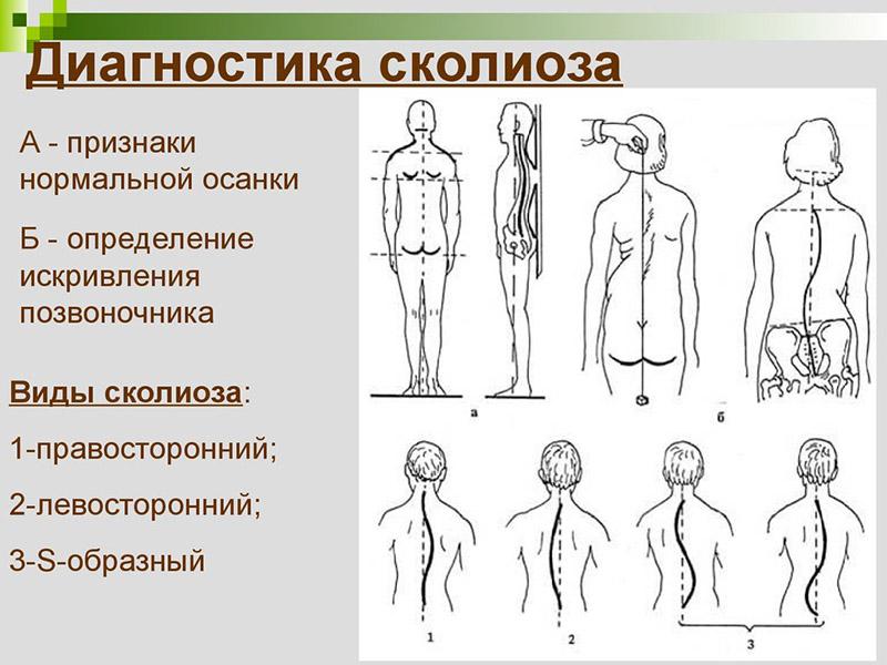 ЛФК при сколиозе у детей: гимнастика и упражнения при 1 степени болезни в домашних условиях