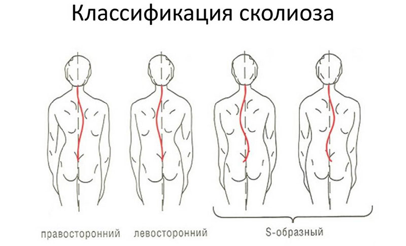 Сколиоз грудопоясничного отдела позвоночника